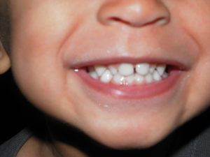 You can never have too many pictures of baby teeth.